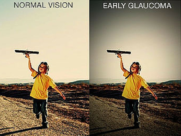 Protect Vision from Glaucoma with Annual Eye Exam